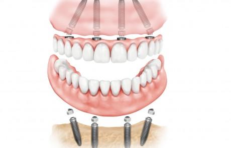 איך משתילים שיניים ?